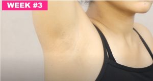 Learn-healthy-techniques-to-remove-armpit-hair-for-girls